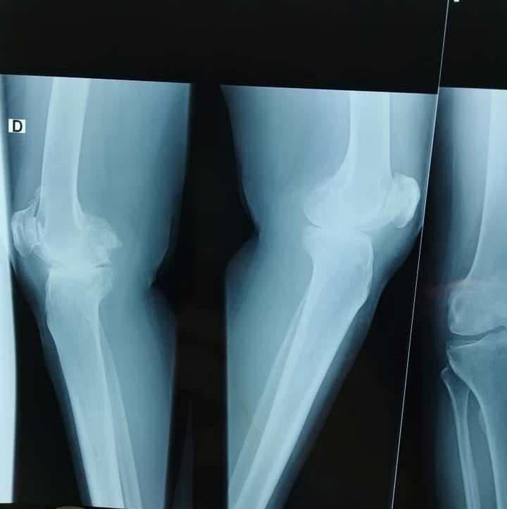 Photo of طاقم طبي ينجح في استبدال كلي للورك ومفصل الركبة لسيدتين بميدلت
