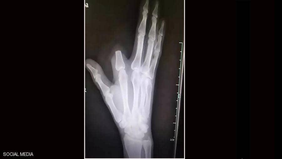"""Photo of قطع إصبعه بسبب لدغة أفعى .. ثم اكتشف """"المفاجأة الصاعقة"""""""