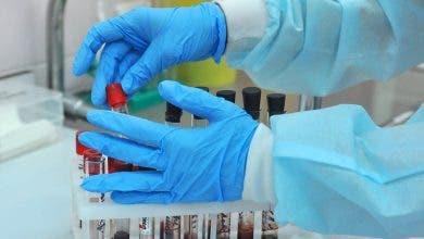 Photo of العيون – الساقية الحمراء.. استبعاد 1331 حالة اشتبه في إصابتها بفيروس كورونا