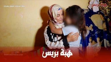 Photo of مرض نادر يحول حياة طفلة الى جحيم بعد عجز والدتها عن دفع تكاليف العلاج