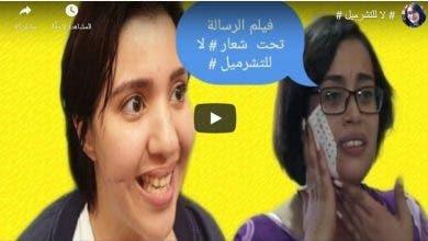 "Photo of فيلم قصير بعنوان :""لا للتشرميل"""